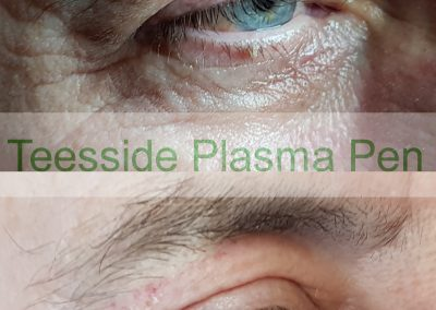 Plasma Pen to Upper Eyelids and Crows Feet