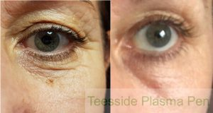 Before and 3 weeks after a single plasma pen treatment to the lower lids