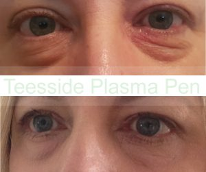 Lower eyelids, single treatment, before and 6 days after