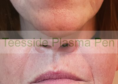 Plasma Pen before and after, lines around the mouth and jowls
