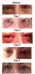 Plasma Pen Lower Eyelift, healing from days 0 to 6