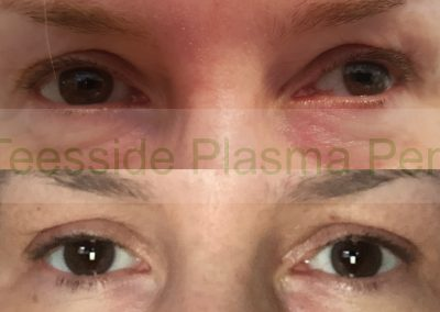 Plasma Pen to upper eye lids, aka a non surgical eye lift