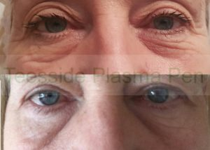 Lower eyelids before and six weeks after a single plasma pen treatment