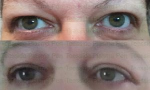 Upper eyelift with Plasma Pen