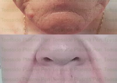 Nasolabial folds, smoker's lines, marionette lines