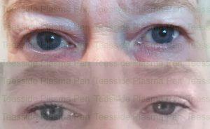 Upper eyelift with Plasma Pen