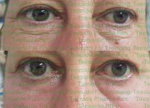 Lower eyelids before and two weeks after a single plasma pen treatment