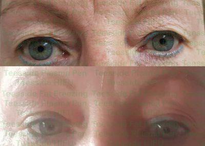Nonsurgical upper eyelid lift