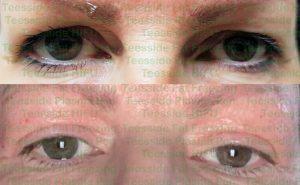 Upper eye lift