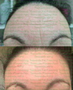 Forehead lines before and after