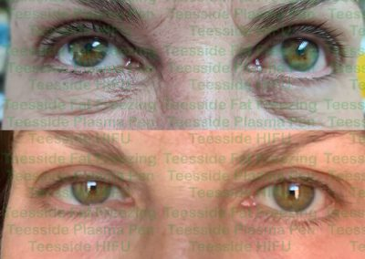Plasma Pen Lower Eyelids Before and After